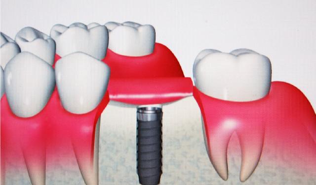 インプラント歯科治療