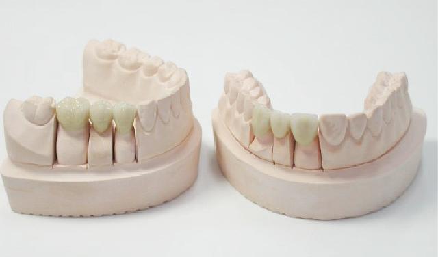 銀歯やセラミック治療